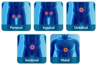 hernia types