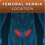 Femoral Hernia Location