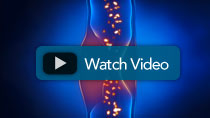 Spinal Stenosis Video